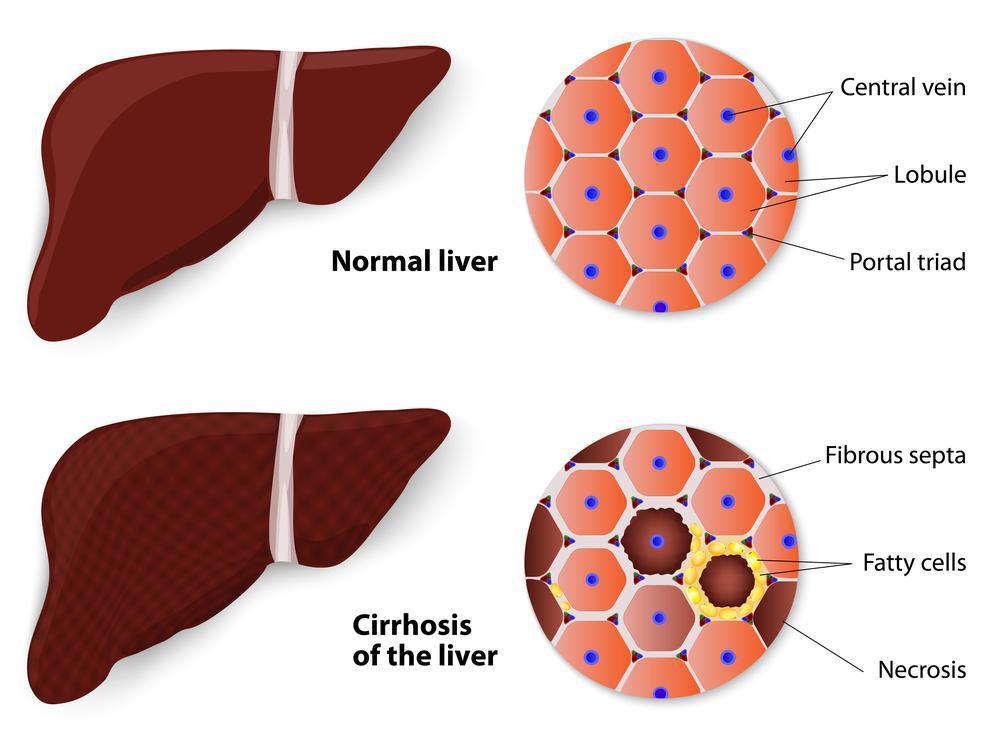 بیماری کبد چرب چیست