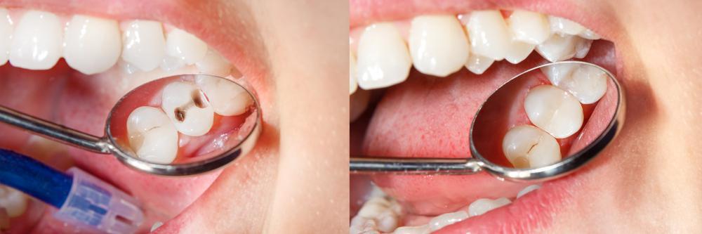 راه مناسب برای جلوگیری از پوسیدگی دندان