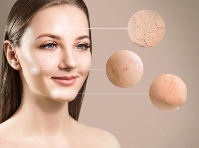 خشکی پوست نشانه چیست؟