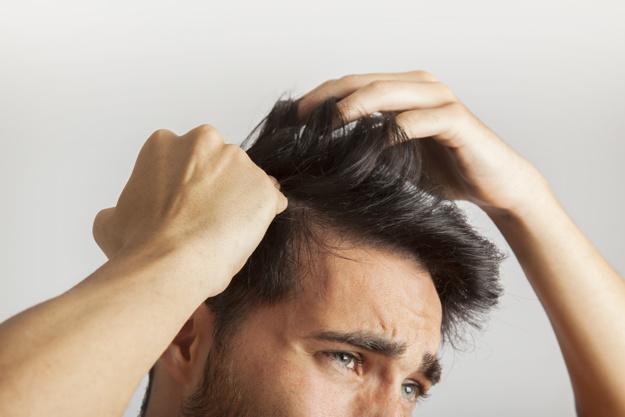 مراقبتهای کاشت مو