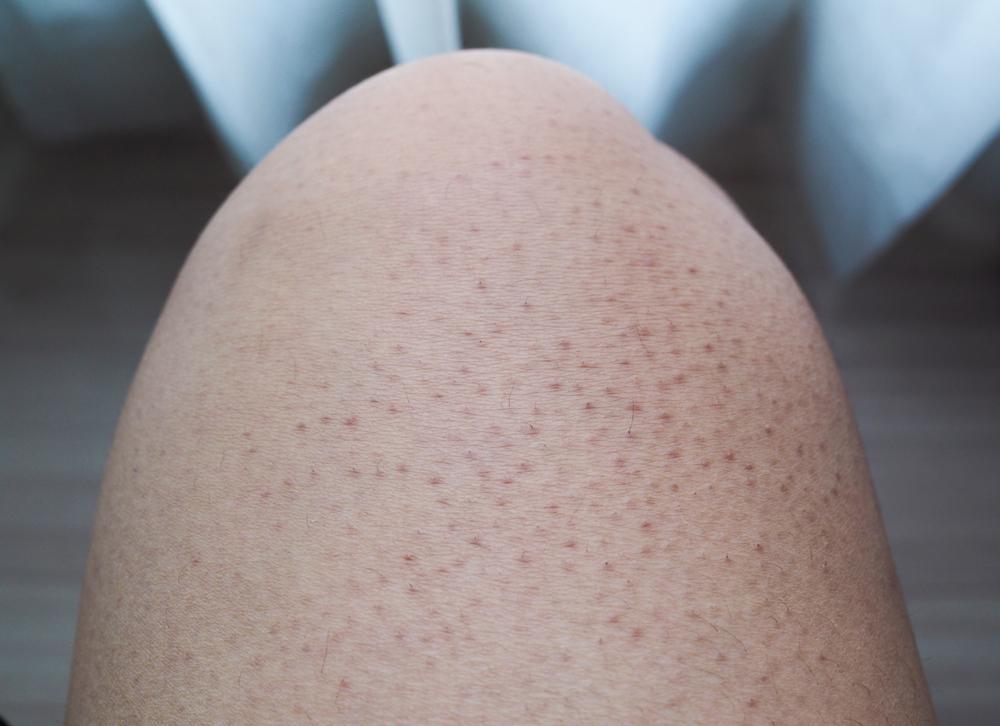 علت ایجاد و درمان پوست مرغی چیست؟