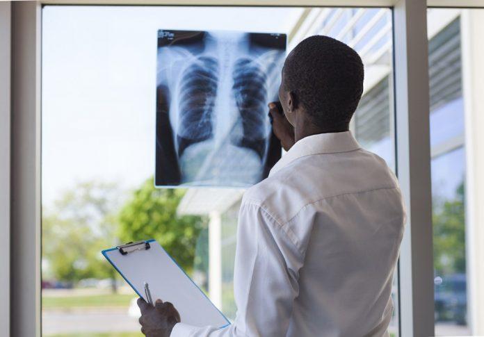آمبولی ریه و عوارض آن