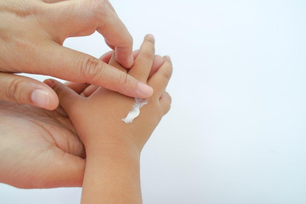 استفاده از پماد های روغنی برای درمان اگزما