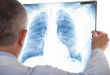بیماری برونشیت چیست؟