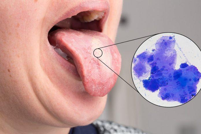 برفک دهان چیست؟