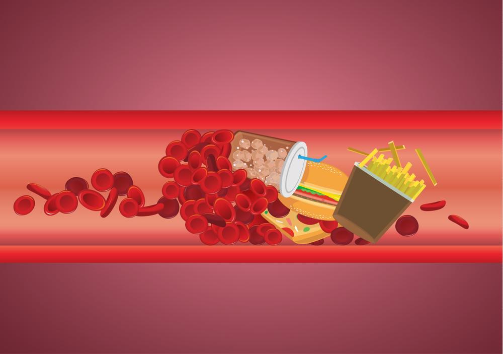 خوراکیهای ممنوع برای چربی خون بالا