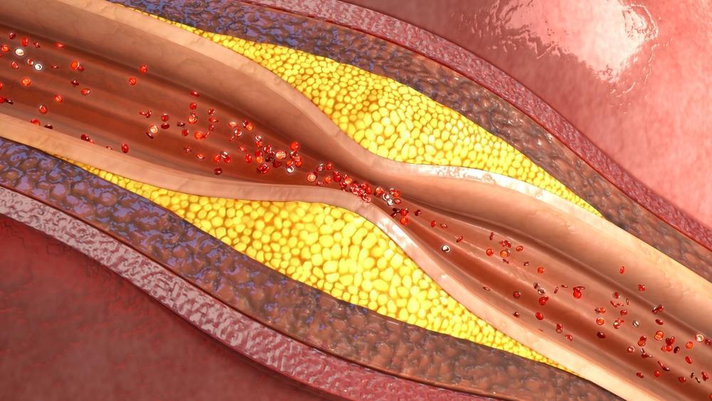 چربی خون چیست؟