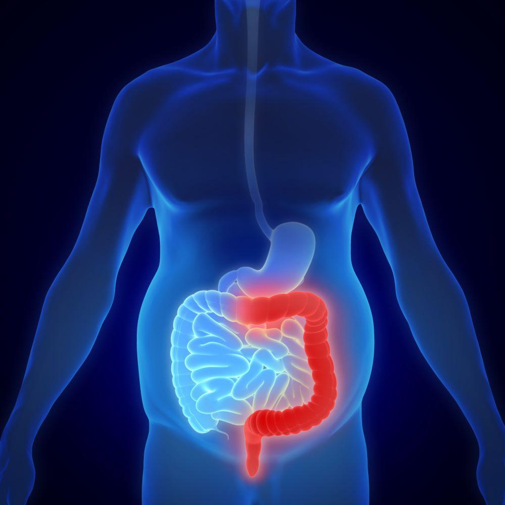 بررسی تصویر برداری تشخیص کولیت روده