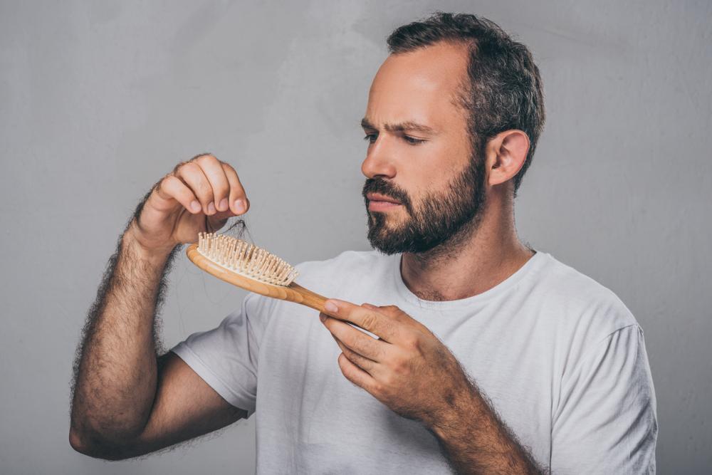 عامل متعدد در ریزش موی مردان