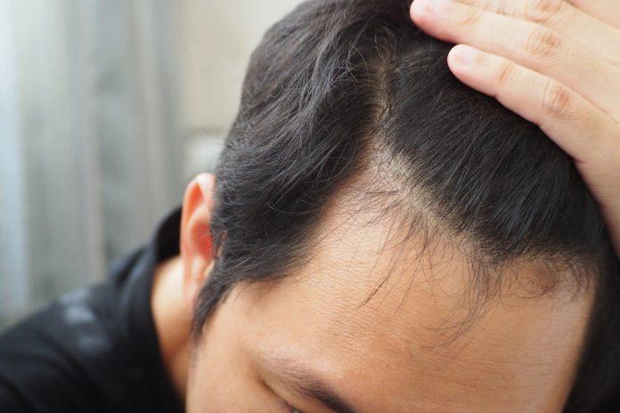علت ریزش موی مردان چیست