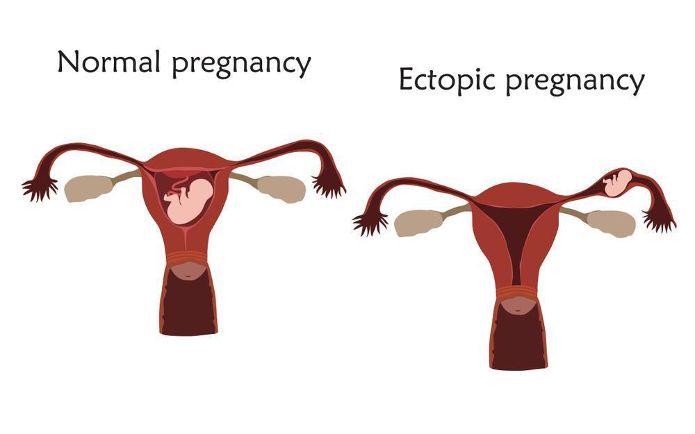 بارداری خارج از رحم چیست