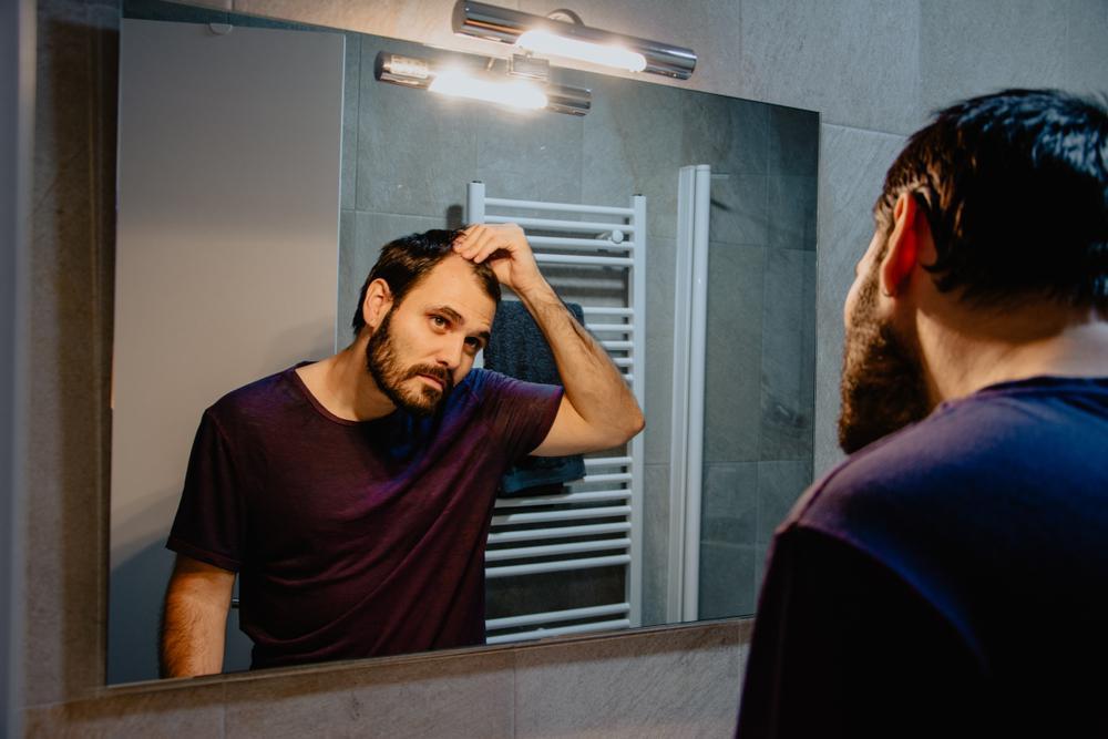 ماینوکسیدیل و تاثیرات آن بر مو