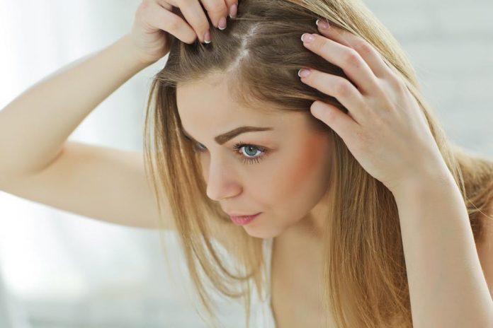 درمان پوسته پوسته شدن سر