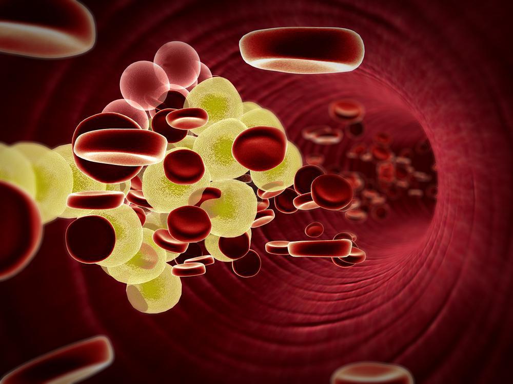 چربی خون بالا با رژیم غذایی یویو