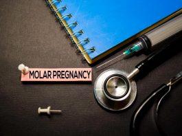 حاملگی مولار