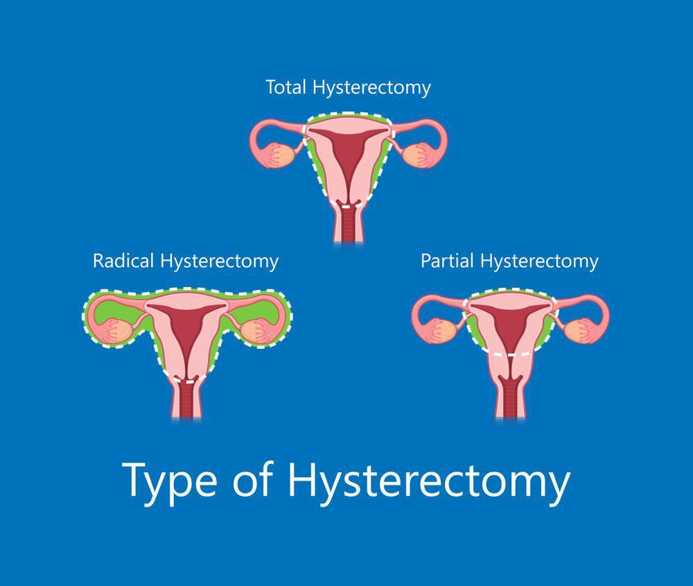 انواع عمل هیسترکتومی