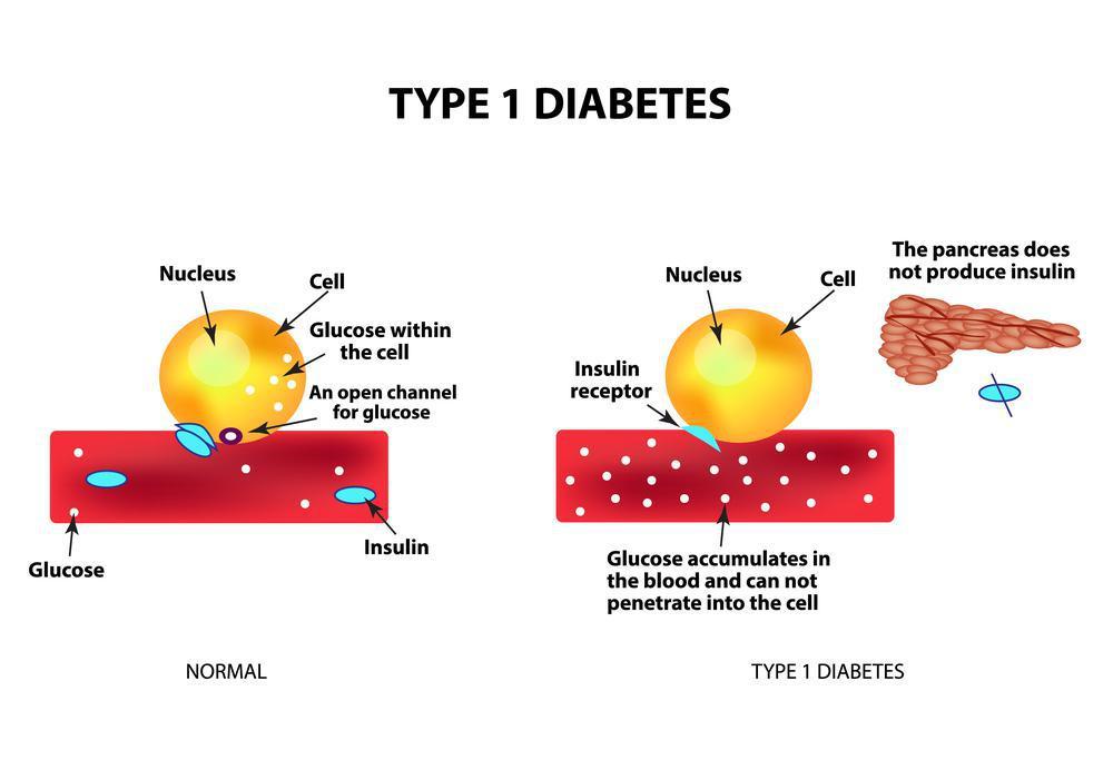 دومین دیابت شیرین: دیابت نوع یک
