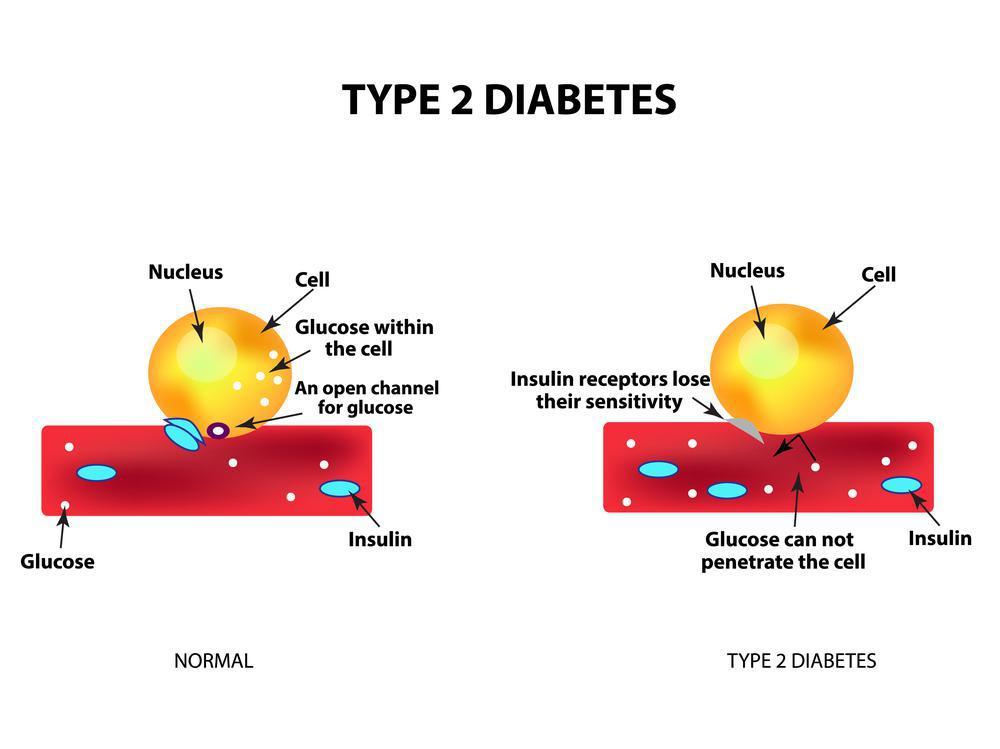 سومین دیابت ملیتوس: دیابت نوع 2