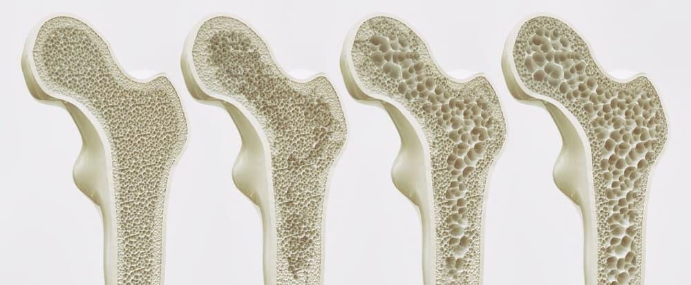 پوکی استخوان چیست
