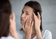 درمان جوش سر سیاه
