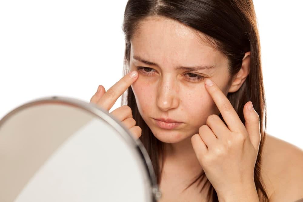 درمان های پزشکی برای سیاهی دور چشم