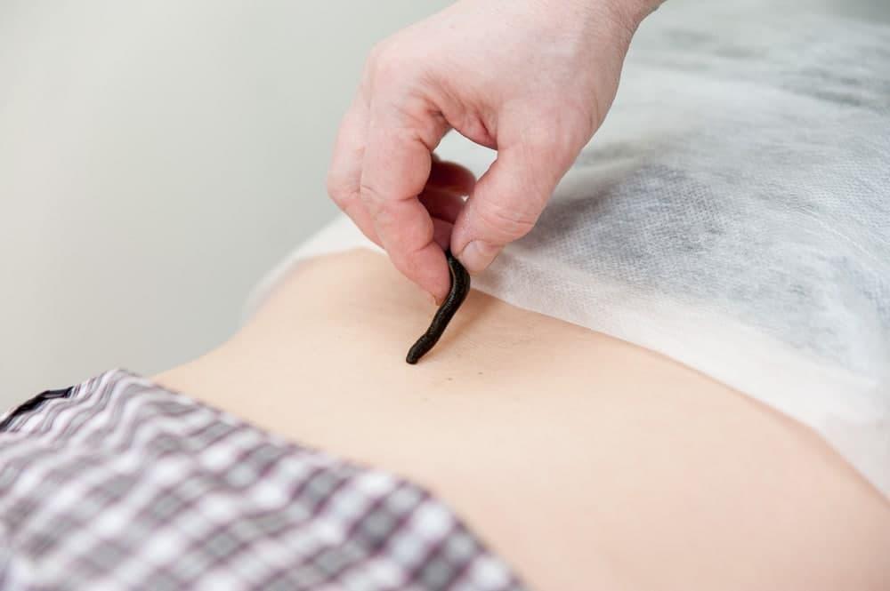 زالو درمانی برای دیابت