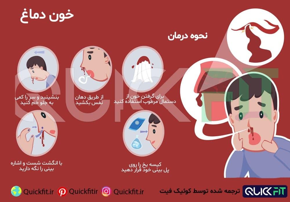 جلوگیری از خون دماغ شدن