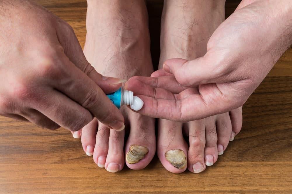 راهکارهای خانگی برای درمان قارچ ناخن