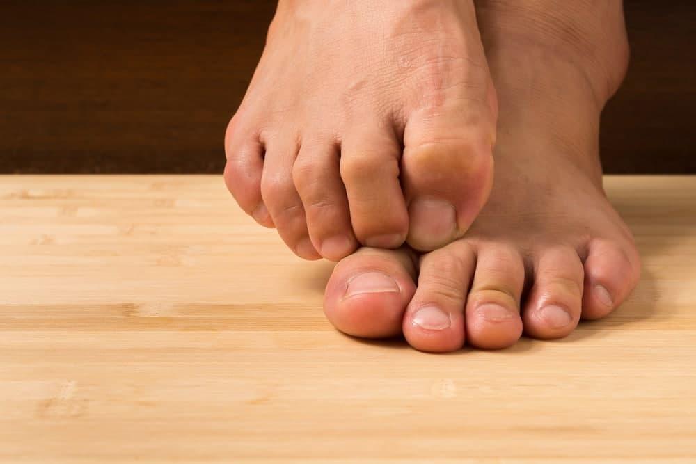 درمان خارش کف پا